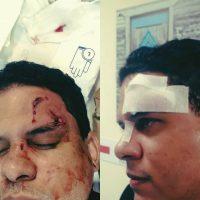Hospital Darío Contreras se querella contra familiares de paciente agredieron médico